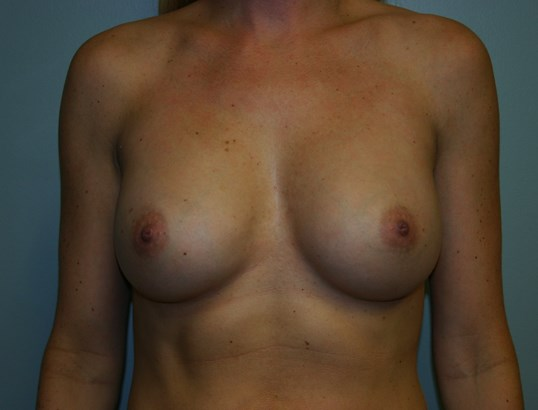 Breast augmentation Houston TX