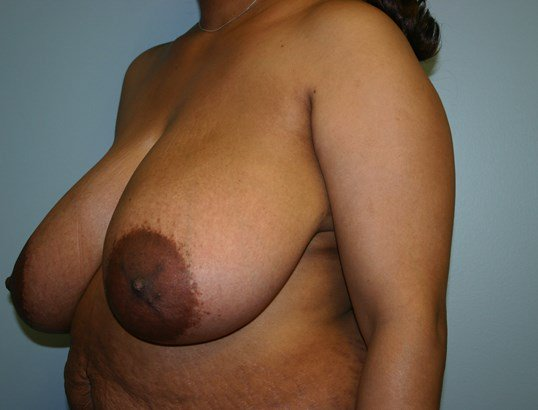 Breast_Reduction_1