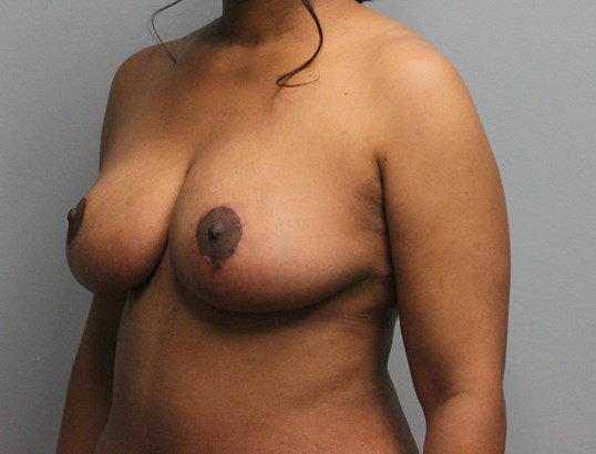 Breast_Reduction_2