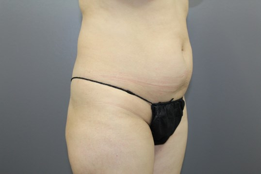 Brazilian liposuction