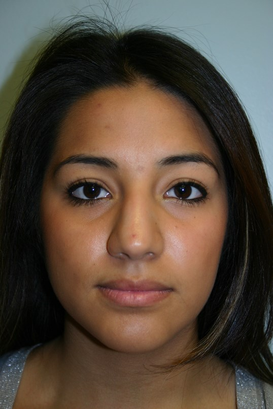 Before Houston rhinoplasty