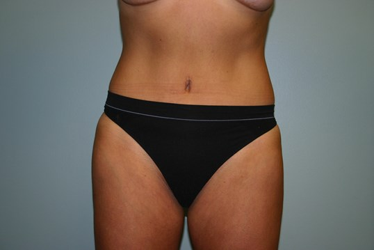 Tummy tuck Texas