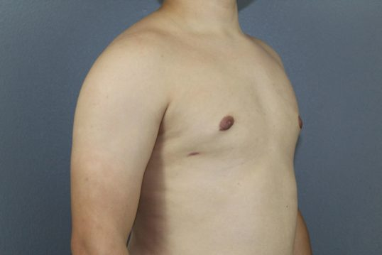 After Gynecomastia in men