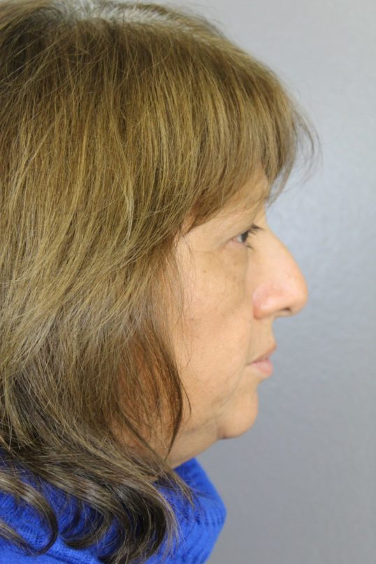 Side View Before Rhinoplasty Surgery